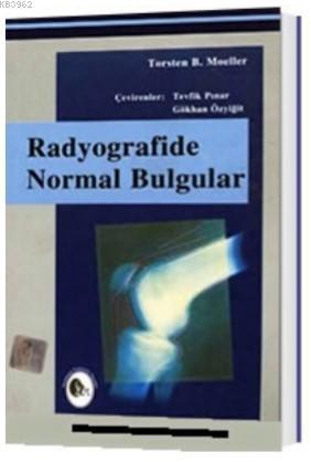 Radyografide Normal Bulgular
