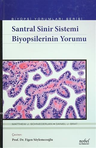 Santral Sinir Sistemi Biyopsilerinin Yorumu