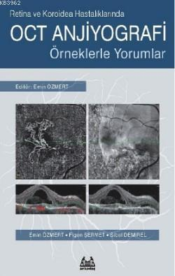 Retina ve Koroidea Hastalıklarında OCT Anjiyografi - Örneklerle Yorumlar