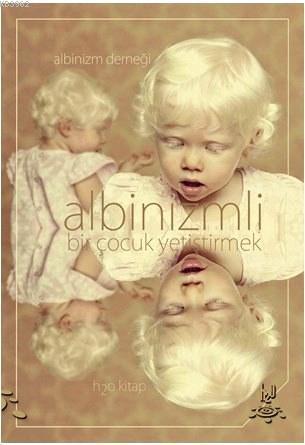 Albinizmli Bir Çocuk Yetiştirmek; Albinizm Derneği