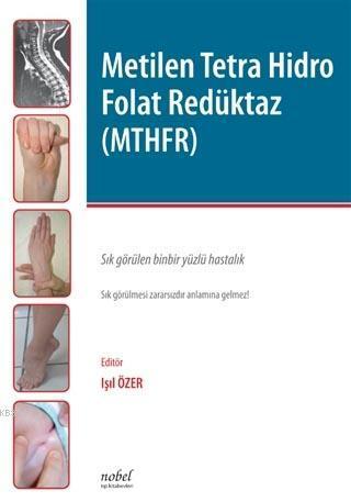 Metilen Tetra Hidro Folat Redüktaz (MTHFR)